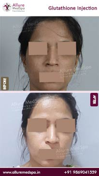 Glutathione Injection Before and After Result