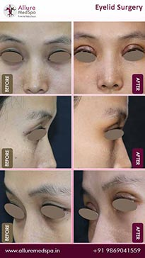 Laser Eyelid Surgery Before and After Images in Mumbai, India