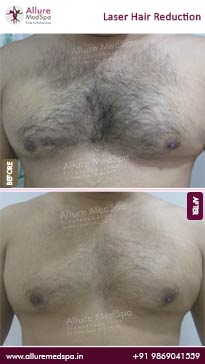 Laser Hair Reduction Before and After Gallery