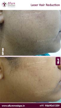 Laser Hair Reduction Before and After Result