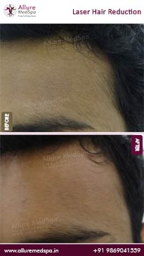 Laser Hair Reduction Treatment Before and After Pictures