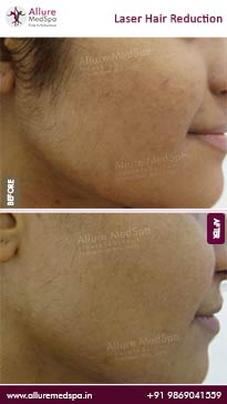 Laser Hair Removal Before and After Images
