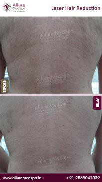 Laser Hair Removal Before and After Result