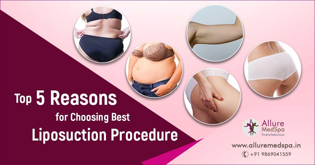 Liposuction Surgery in Mumbai