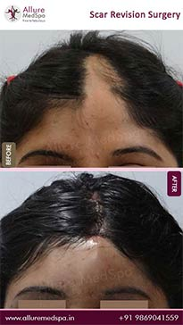 Scar Removal Before and After Photos in Mumbai, India