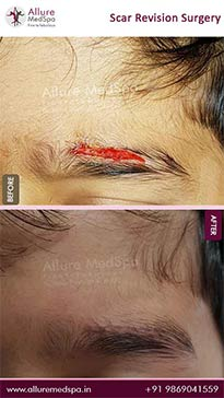Scar Revision Surgery Before and After Images in Mumbai, India