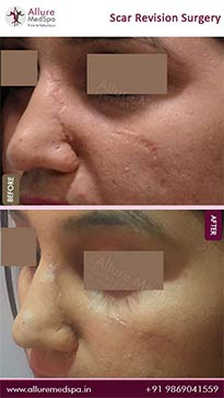 Scar Revision Surgery Before and After Result in Mumbai, India