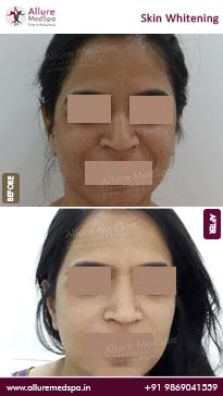 Skin Brightening Treatment Before and After Pictures