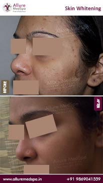Skin Lightening Before and After Result