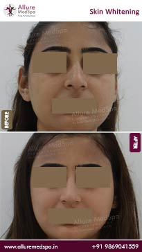Skin Lightening Treatment Before and After Pictures