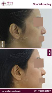 Skin Whitening Before and After Images