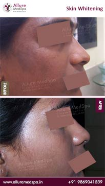Skin Whitening Before and After Result