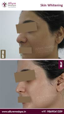 Skin Whitening Treatment Before and After Pictures
