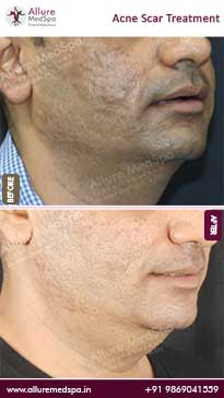 Acne Scar Treatment Before and After Images