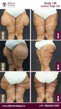 Body Lift Surgery Before and After Images
