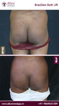 Brazilian Buttock Lift Before and After Images