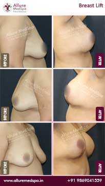 Breast Lift Surgery Before and After Images
