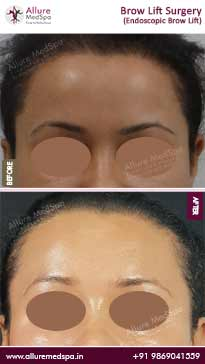 Brow Lift Surgery Before and After Images