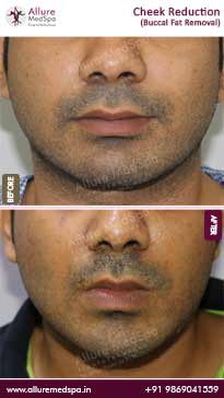 Cheek Reduction Surgery Before and After Images