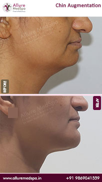 Chin Implant Surgery Before and After Images