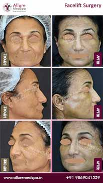 Face Lift Before and After Result