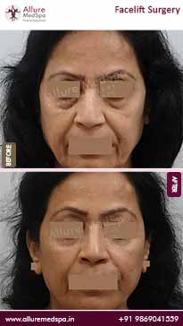 Face Lift Surgery Before and After Pictures