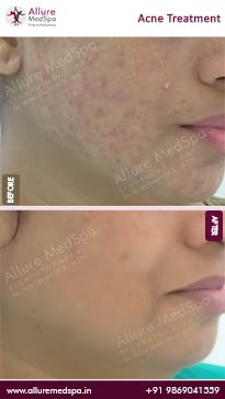 Face Pimple Treatment Before and After Pictures