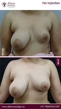 Fat Injection Before and After Images