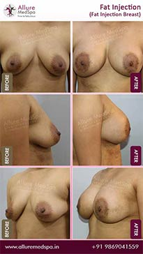 Fat Transfer Before and After Gallery