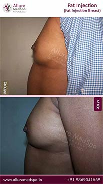 Fat Transfer Before and After Pictures