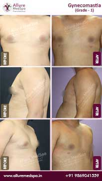 Gynecomastia Surgery Before and After Images