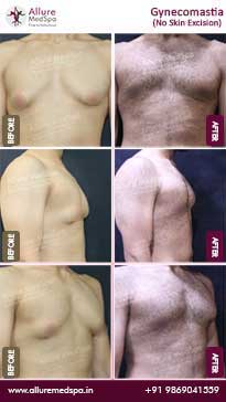Gynecomastia Surgery Before and After Pictures