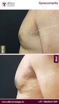 Gynecomastia Surgery Before and After Result