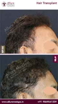 Hair Transplant Before and After Gallery