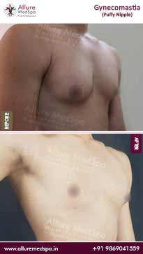 Puffy Nipple Gynecomastia Before and After Images