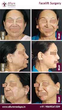 Rhytidectomy Before and After Images