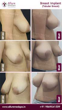 Tubular Breast Implants Before and After Images