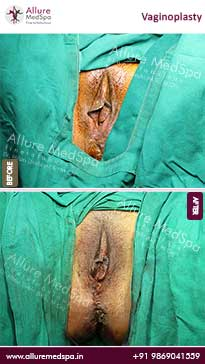 Vagina Tightening Surgery Before and After Images