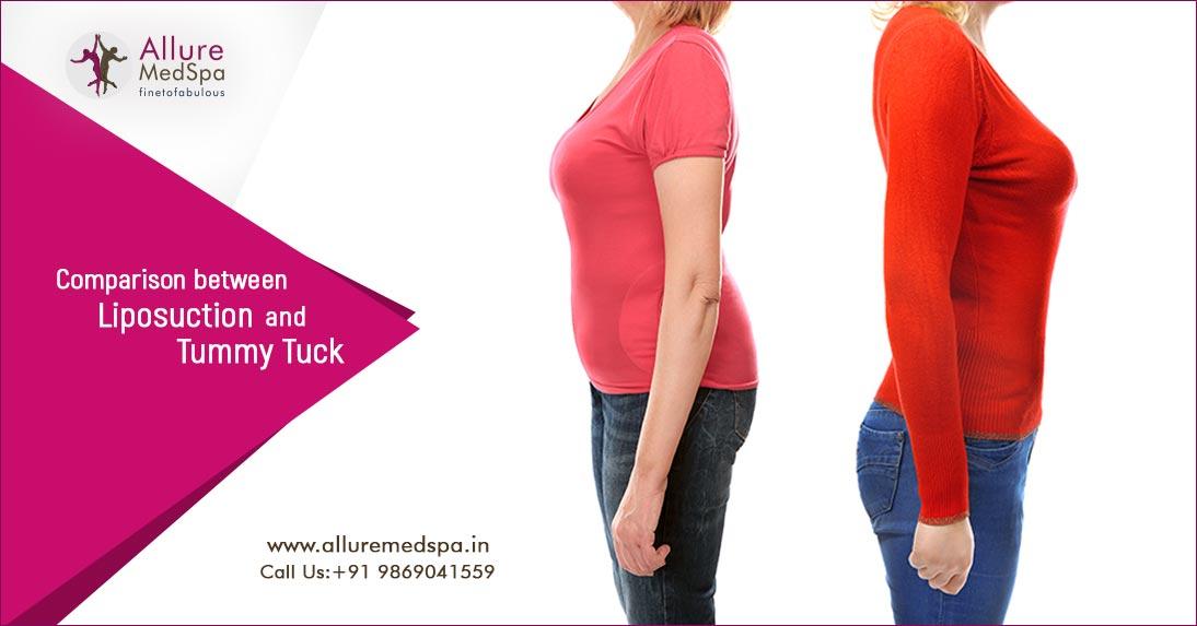 Liposuction Surgery vs Tummy Tuck Surgery