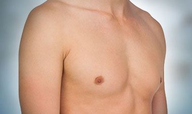 Gynecomastia in Mumbai, India